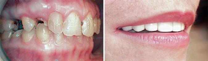 stress au cabinet dentaire - dentophobie - stomatophobie