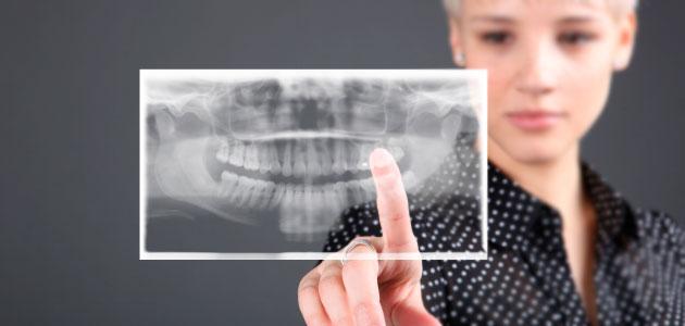 imagerie médicale numérique 3D scanner cone beam 3D