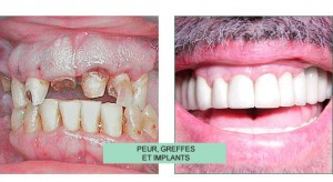 témoignage - stress au cabinet dentaire - dentophobie – stomatophobie